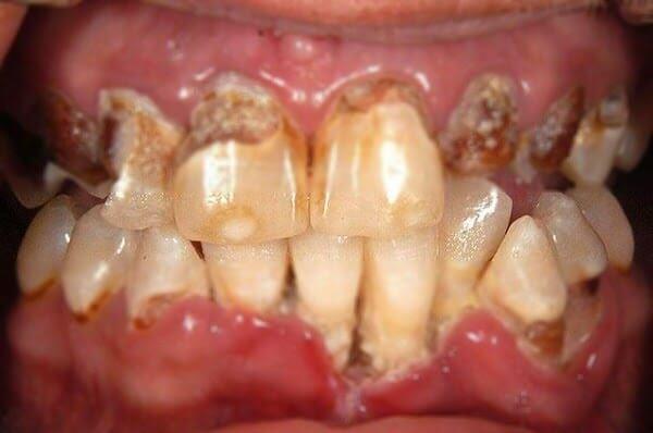 Men răng hỏng, miệng khô và hơi thở có mùi