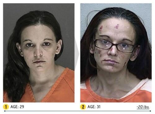 Trong hình, người phụ nữ sụt 9 kg chỉ sau 2 năm.