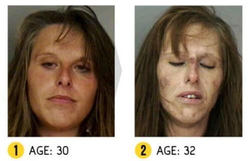 Nghiện cocaine cũng gây sụt cân nhanh chóng,  sưng tấy mũi khi dùng dưới dạng hít. Người dùng heroine bị áp xe, giảm cân, bong tróc vảy trên da do tiêm chích.